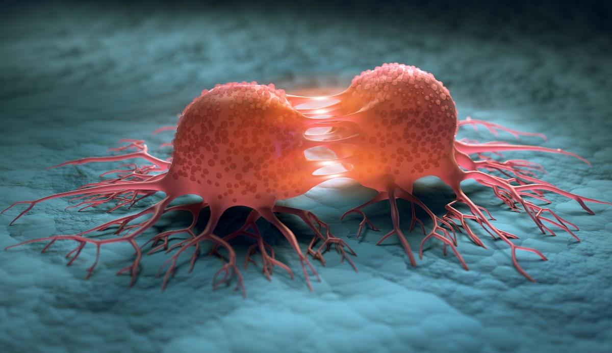 Nádorové bunky. Zdroj: Getty Images