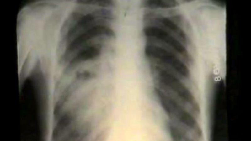 Absces pľúc