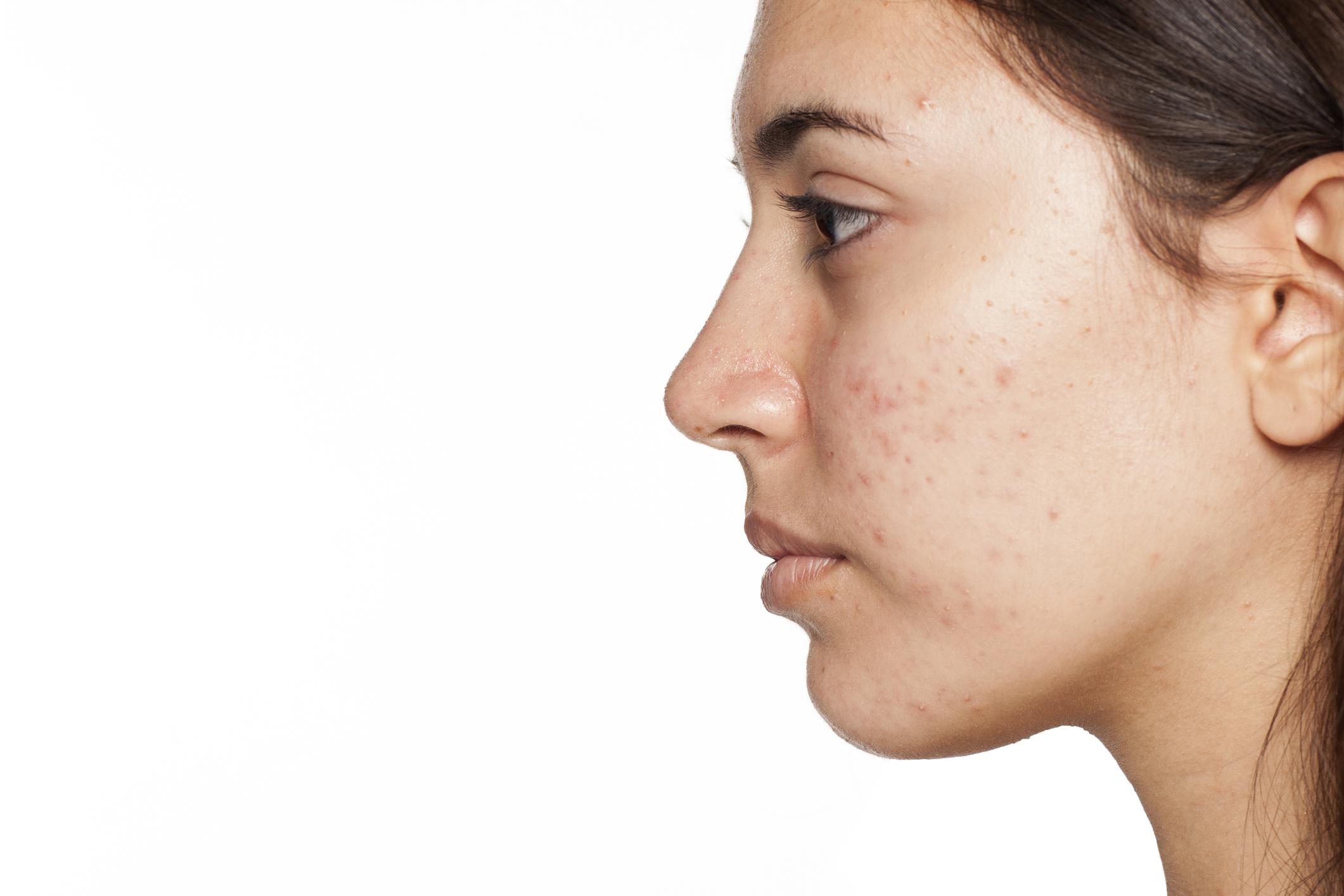 Akné: Aké formy akné poznáme? Ako postupovať pri liečbe?