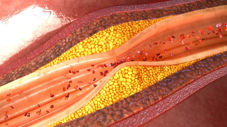 Ateroskleróza