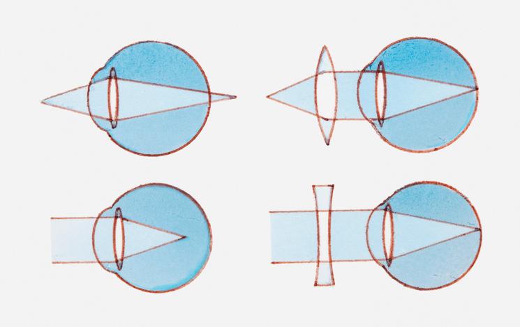 9be2b3739 HORE: ďalekozrakosť, korekcia spojkou DOLE: krátkozrakosť a korekcia  rozptylkou. Foto: Thinkstock
