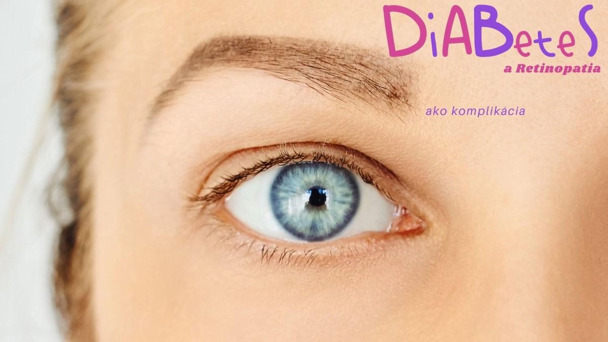 Diabetická retinopatia: Čo je to, prečo vzniká a ako sa prejavuje?
