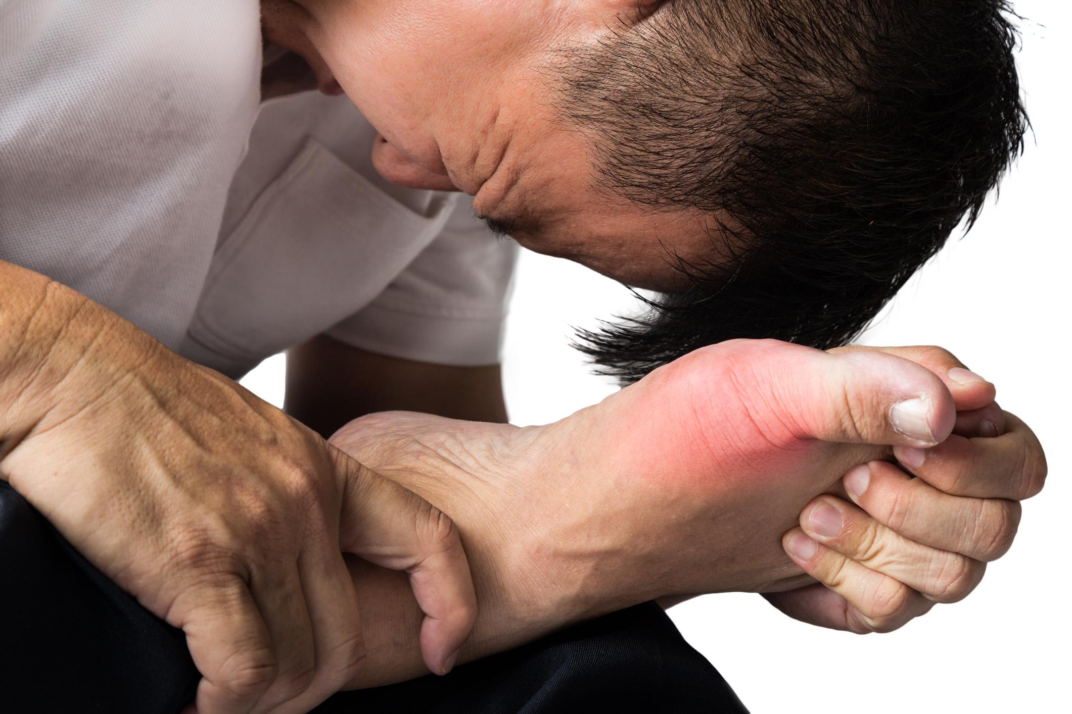 Dna: Čo je choroba dna, prečo vzniká, čo evokuje záchvaty a aká je liečba?