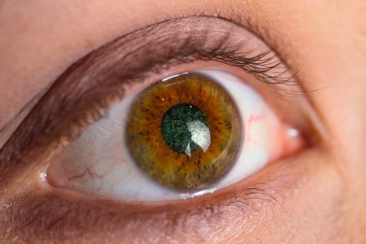 Glaukóm či zelený zákal: Aké má príčiny, príznaky a liečbu?