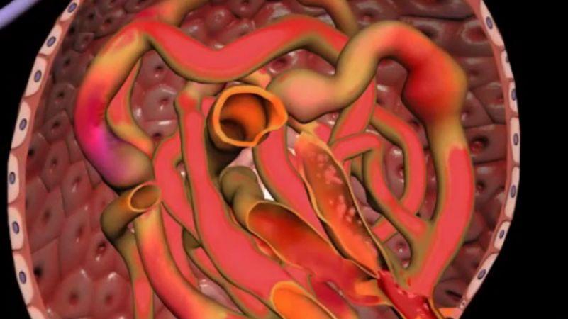 Glomerulonefritída