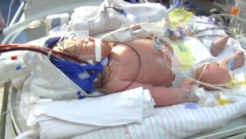 Hypoxia u novorodencov