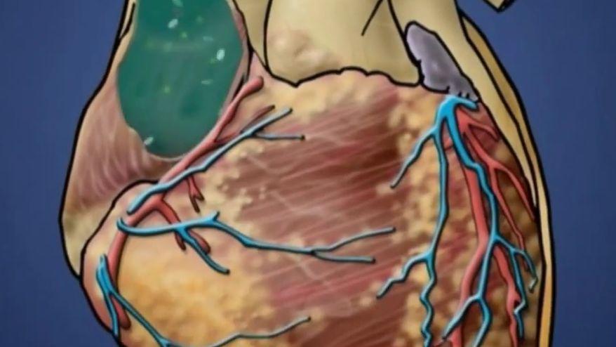 Infekčná endokarditída