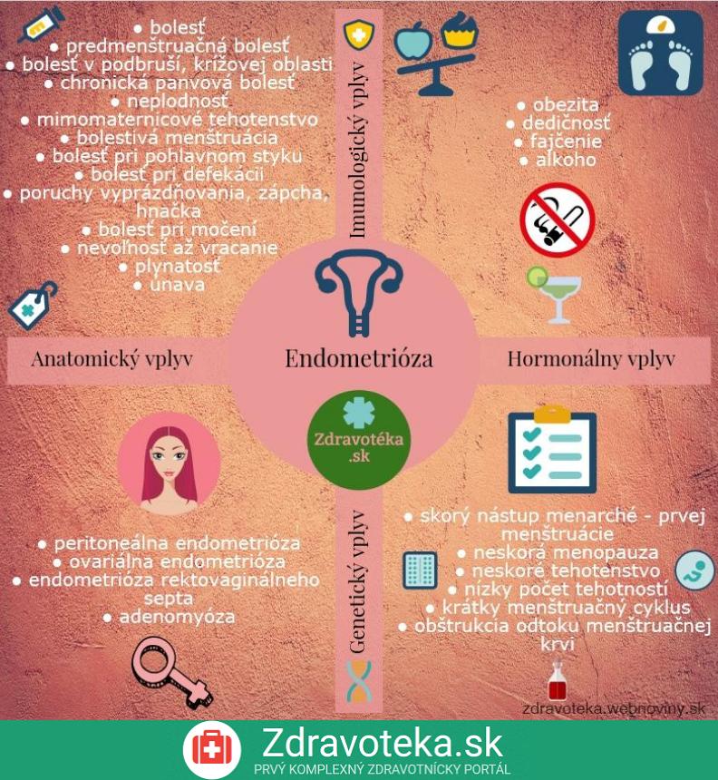 Endometrióza - infografika, príčiny, rizká, príznaky