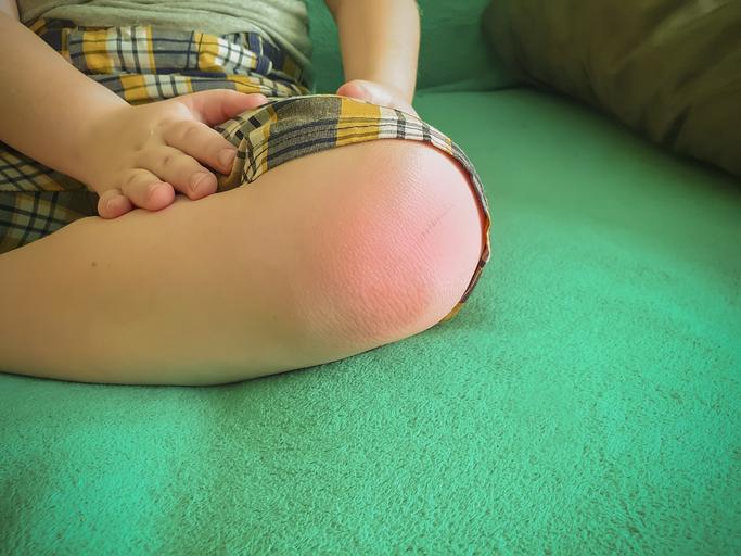 Juvenilná idiopatická artritída