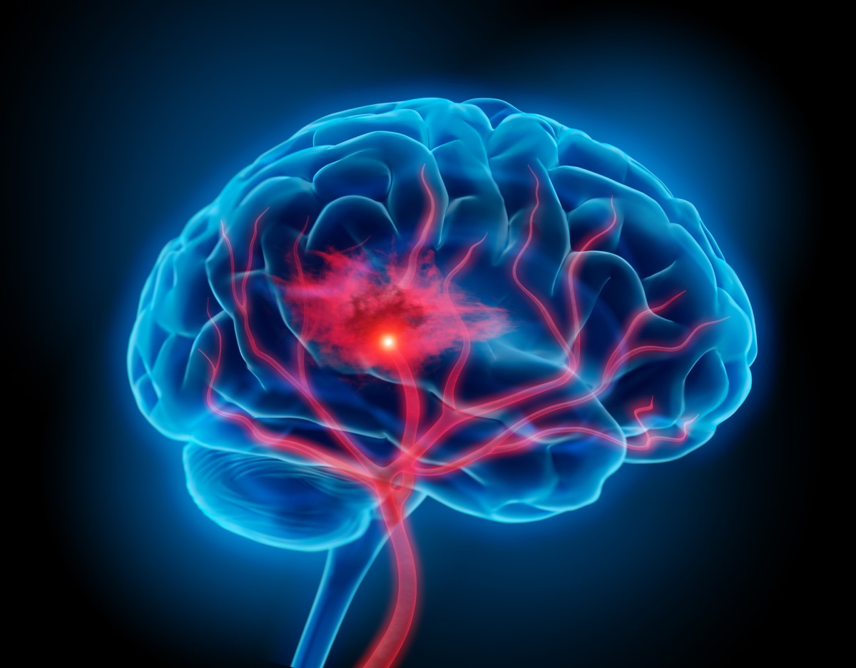 Krvácanie do mozgu: Prečo vzniká a aké má príznaky či liečbu?