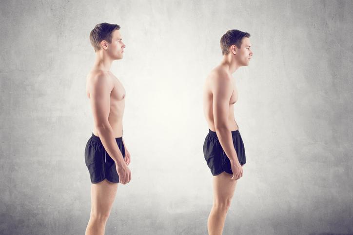 Lordóza u detí a dospelých: Prečo vzniká chorobné zakrivenie chrbta?