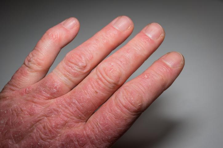 Psoriatická artritída