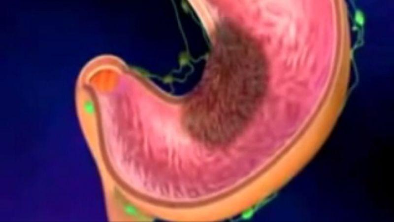 Rakovina žalúdka