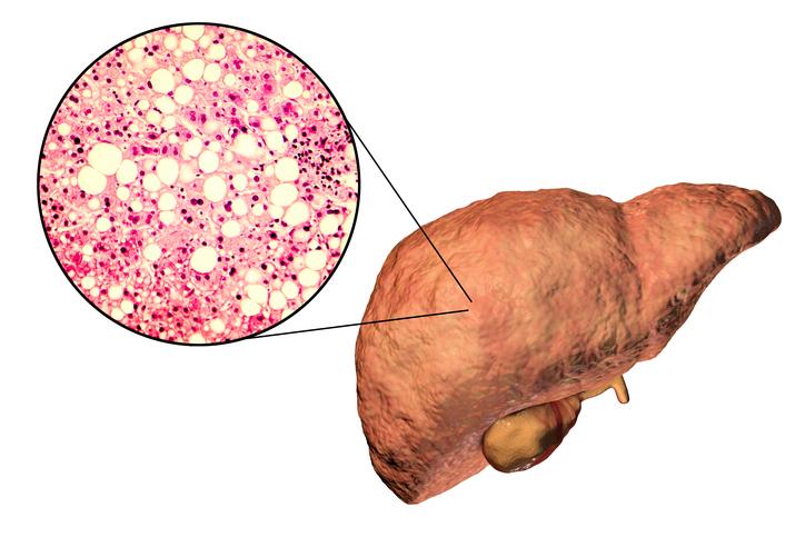 Steatóza pečene: Čo je to, prečo vzniká a ako sa prejavuje? Ako liečiť pečeň?