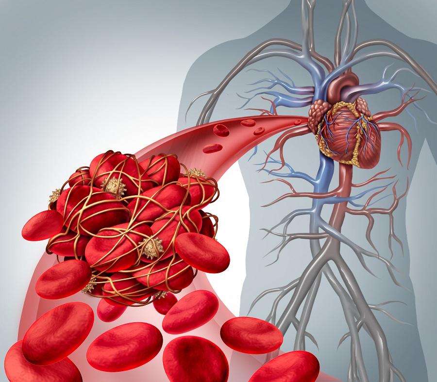 Tromboembolická choroba