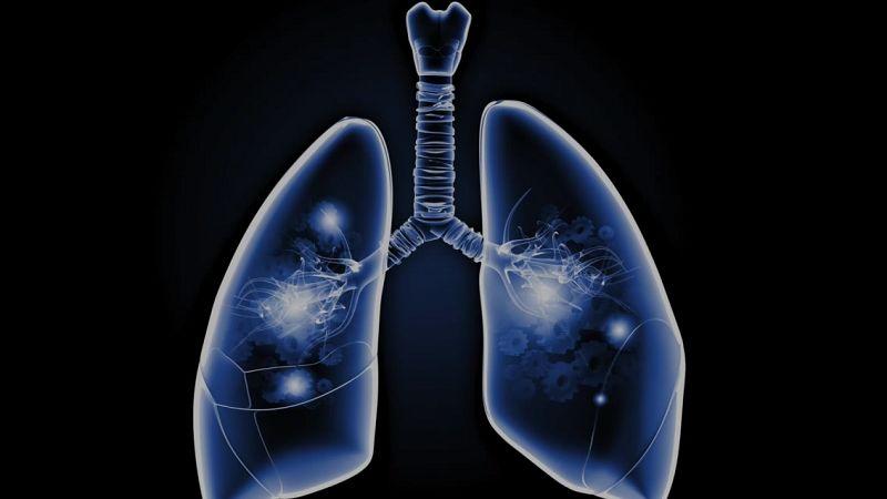 Tuberkulóza pľúc