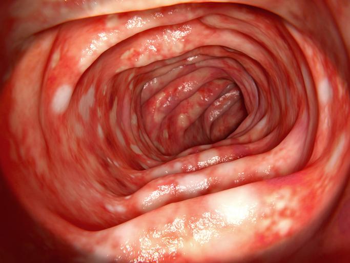 Ulcerózna kolitída