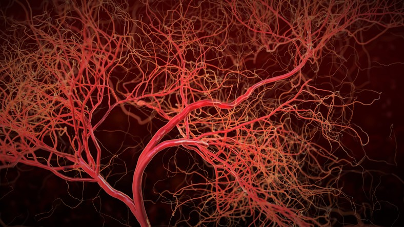 Čo sú vaskulitídy a čo je príčinou zapálených ciev? + Príznaky, liečba