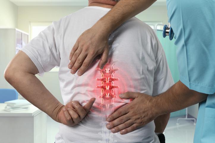 Vertebrogénny algický syndróm: Bolesť chrbta a jej príčiny a príznaky?