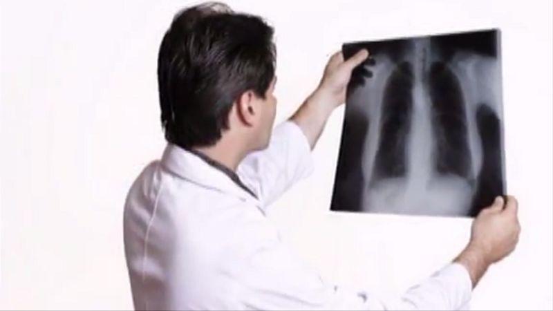 Zápal pľúc