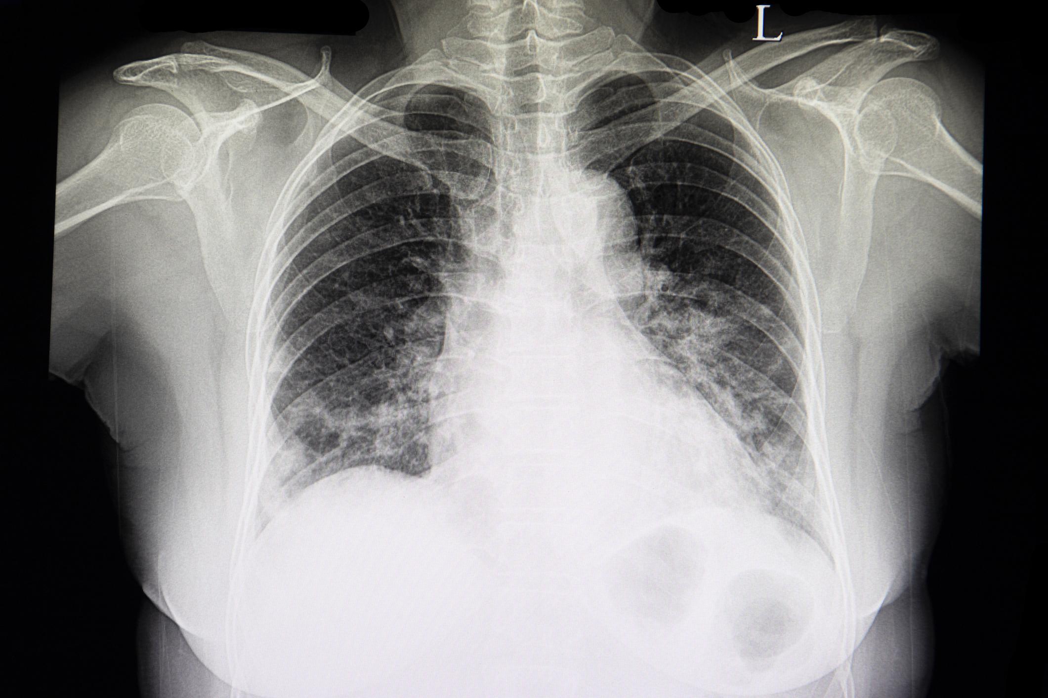 Ako sa prejavuje zápal pľúc, a aká liečba je najefektívnejšia?