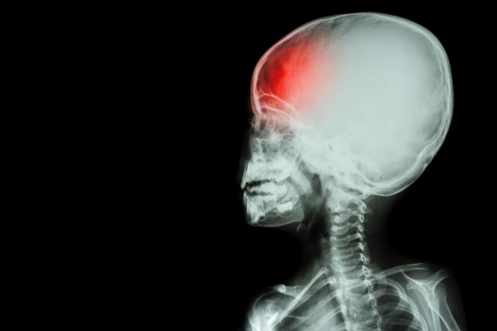 Ako rozoznať otras mozgu u detí