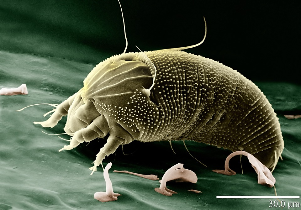Alergia na prach a jej prejavy? Pozor na roztoče v posteli