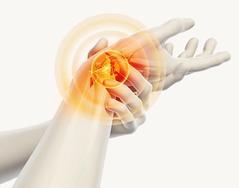 Artróza a význam stravy v prevencii a liečbe