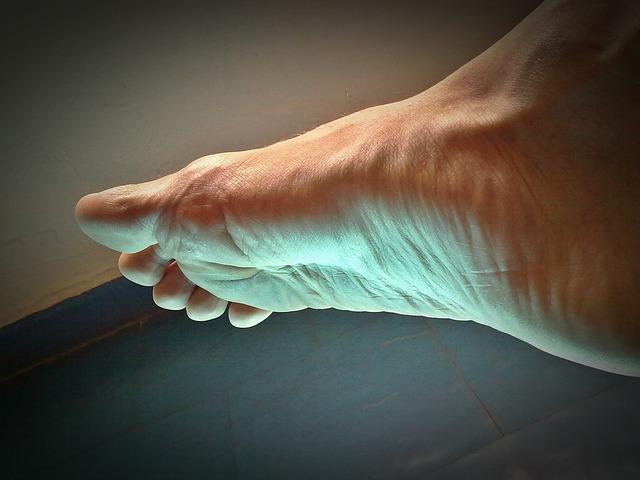 Diabetická noha ako komplikácia cukrovky
