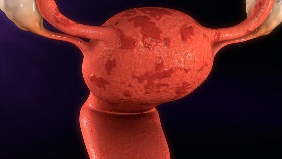 Endometrióza a neplodnosť