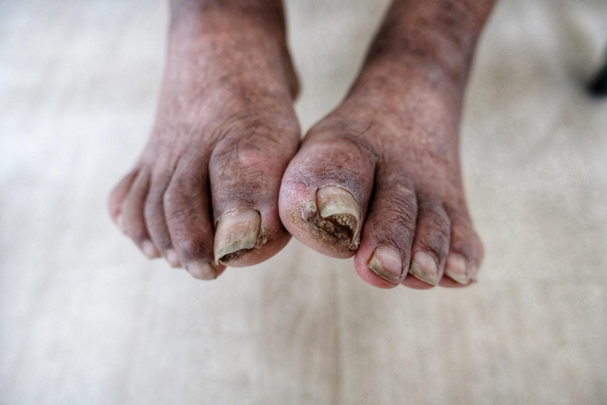 Čo je to gangréna? Aké má príznaky a liečbu?