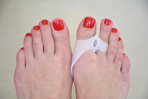 Ako vzniká Hallux valgus: Vybočený palec? Vplyv obuvi + liečba a dlahy