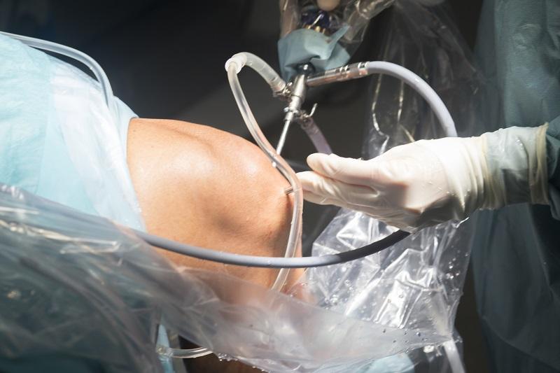 Liečebno diagnostický výkon. Artroskopia kolena.