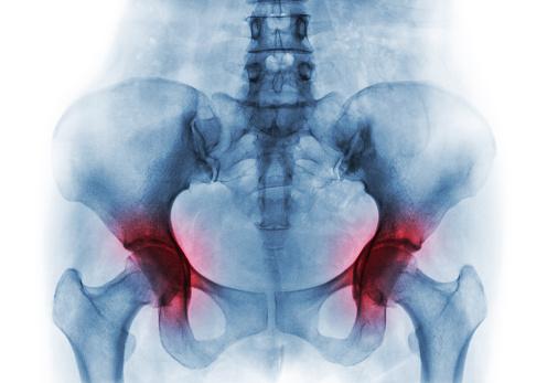 Koxartróza môže skončiť umelou náhradou bedrového kĺbu