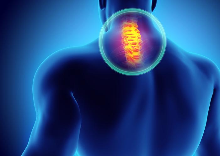 Ako súvisí krčná chrbtica a točenie hlavy