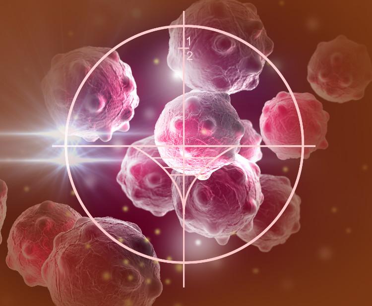 Je nádor a rakovina to isté?