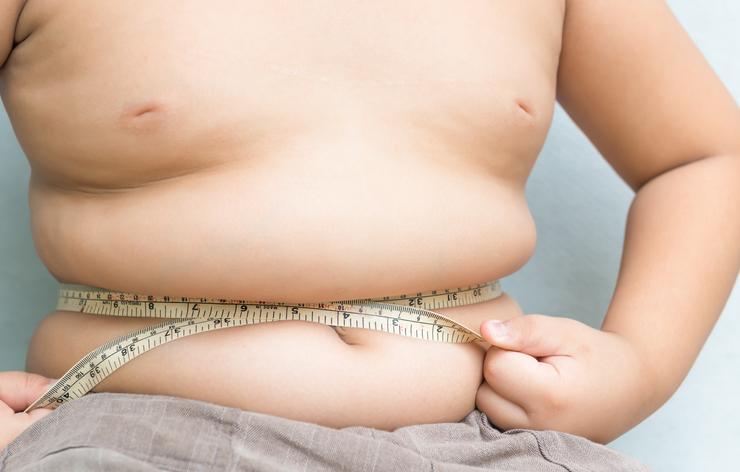 Obezita u detí a mladých, čo proti nej robiť?