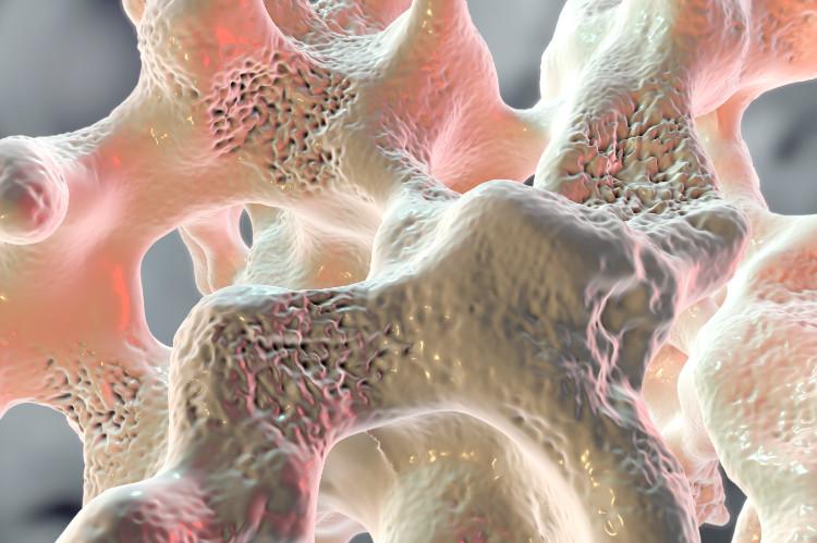 Osteoporóza u detí verzus osteogenesis imperfecta