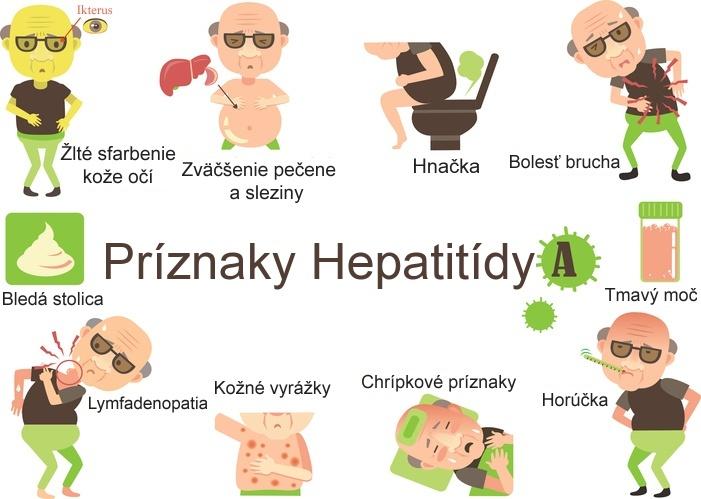 Obrázok znázorňuje príznaky pri hepatitída typu A