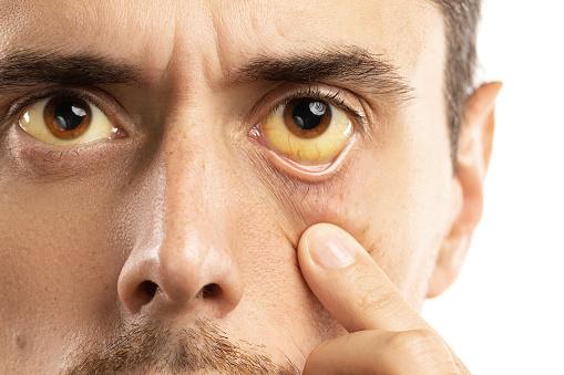 Problémy s pečeňou vám odhalia tieto príznaky