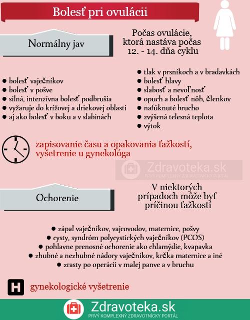 Infografika udáva informácie o ovulačnej bolesti a jej najčastejších chorobných príčinách