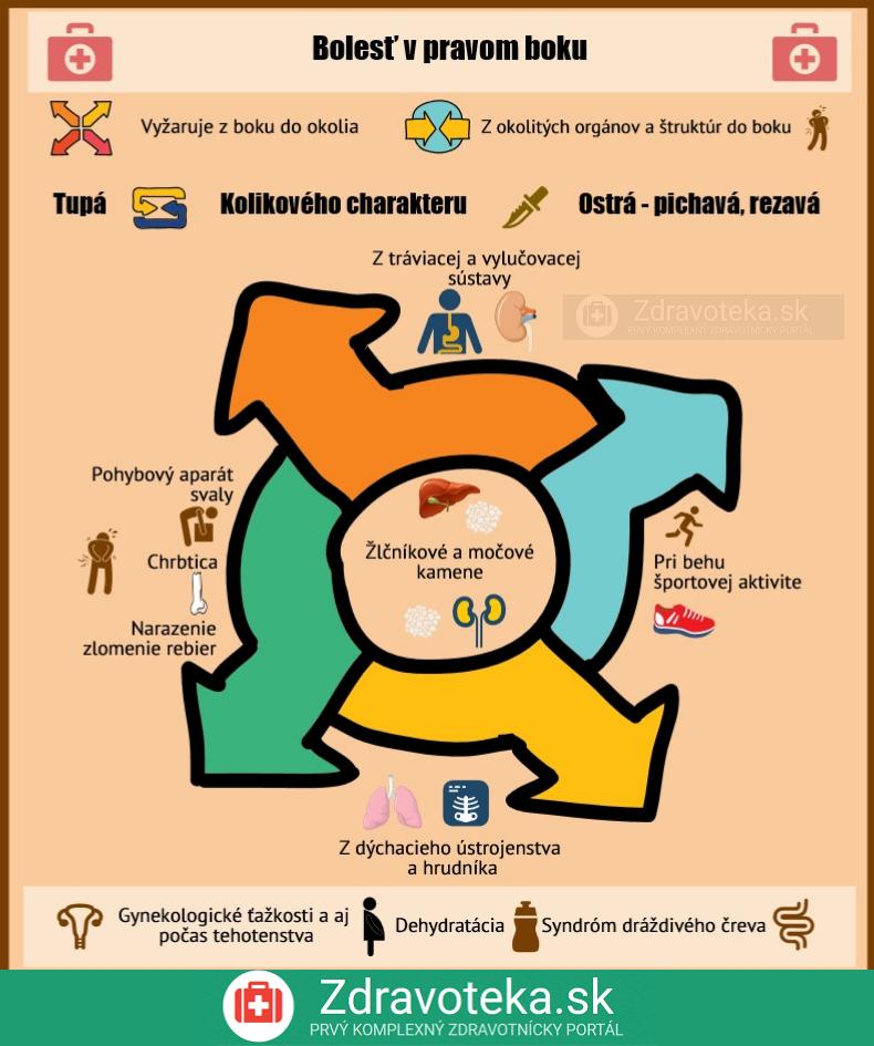 Infografika vyjadruje najčastejší pôvod bolesti v boku