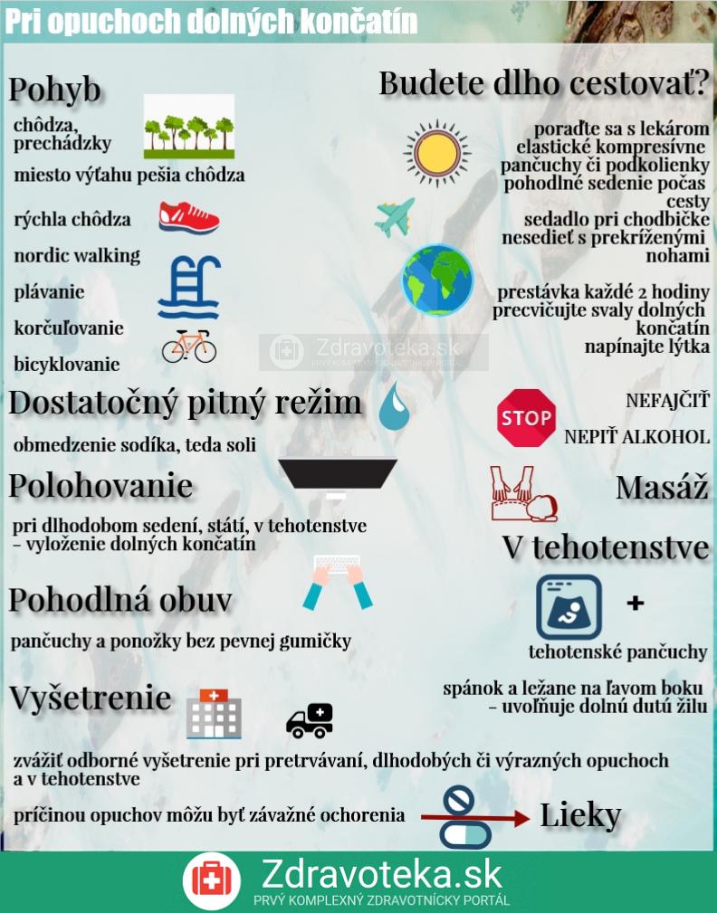 Infografika uvádza to, čo pomáha pri opuchu dolných končatín