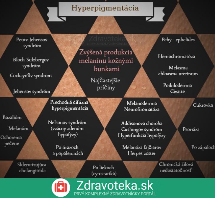 Infografika uvádza najčastejšie príčiny hyperpigmentácie