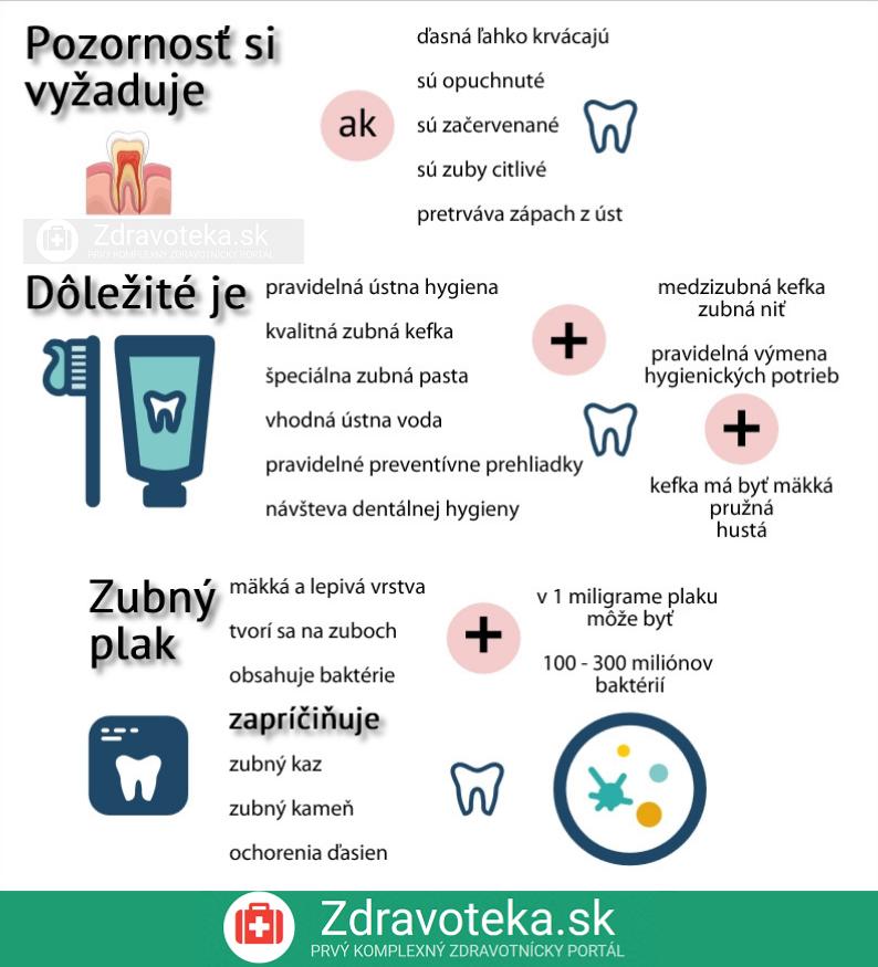 Infografika o krvácaní z ďasien, čo si vyžaduje pozornosť pri krvácaní z ďasien, dôležité dodatočné informácie ku krvácaniu z ďasien a čo je zubný plak