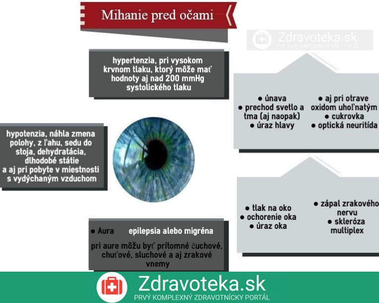 Infografika o príčinách mihania pred očami