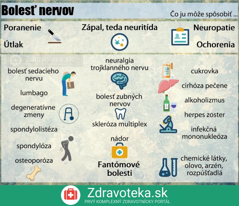 Infografika znázorňuje niektoré príčiny bolesti nervov