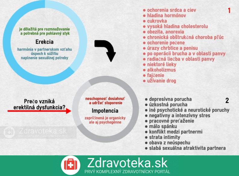 infografika o príčinách erekcie organické a psychogénne faktory