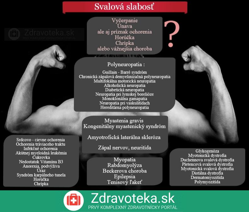 Infografika uvádza príčiny svalovej slabosti