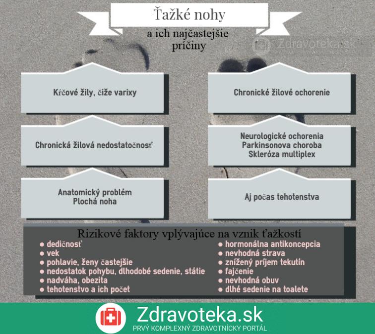 Infografika zhŕňa najčastejšie príčiny ťažkých nôh a rizikové faktory vzniku ochorení